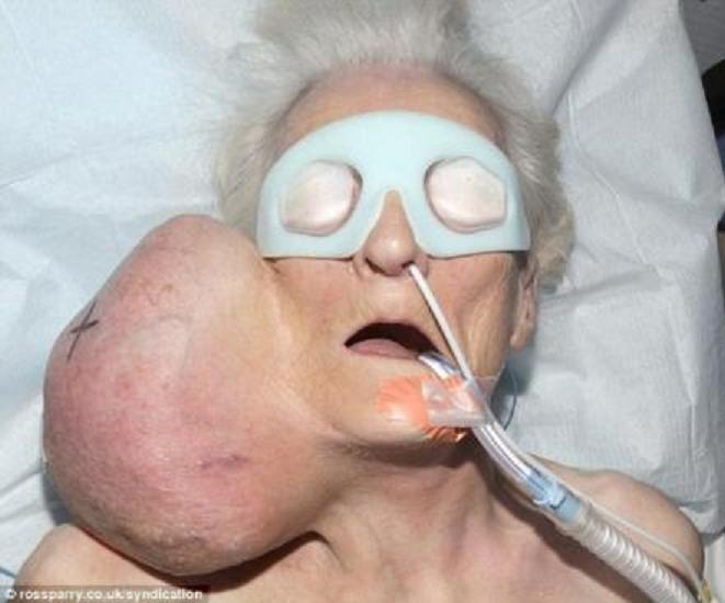 Una mujer vive 20 años con un tumor de dos kilos en el cuello, y su marido tan campante