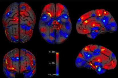 Sepa de una vez por qué los hombres tienen el cerebro más grande que el de las mujeres