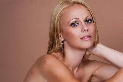 Una joven se atreve a publicar en Facebook las cicatrices de su cáncer de mama, y se queda sin amigos