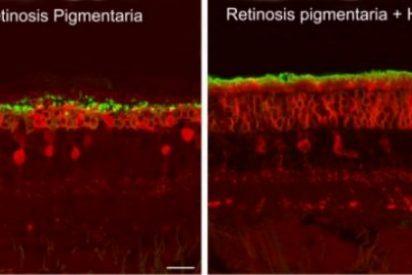 El principal componente de la marihuana conserva la vista de las ratas con retinosis