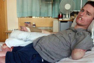 Una bacteria carnívora deja a un padre de familia sin piernas, un brazo y parte de la cara