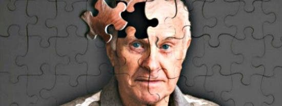 Hallan una 'milagrosa' proteína que regenera la capacidad mermada por el Alzheimer