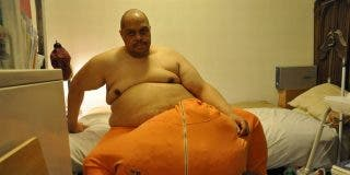 Muere el hombre al que se le hincharon los testículos hasta pesarle 63 kilos por haberse sentado encima