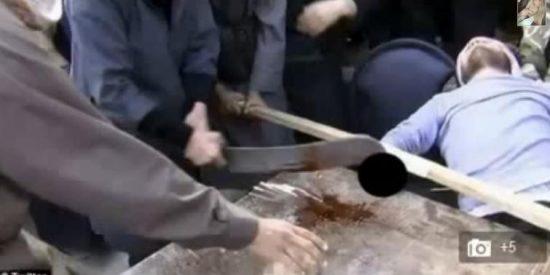 Las imágenes de la amputación de la mano a un ladrón que han subido a Twitter los sirios