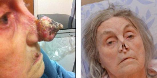 Una abuela acude al hospital a que le curen una pierna y le amputan la nariz al grito de ¡Pinocho!