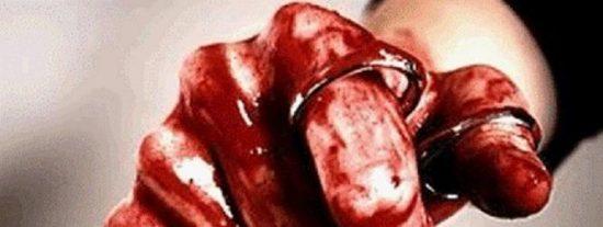 Un finlandés ataca con unas tijeras el rostro de un agente de Policía en Almería