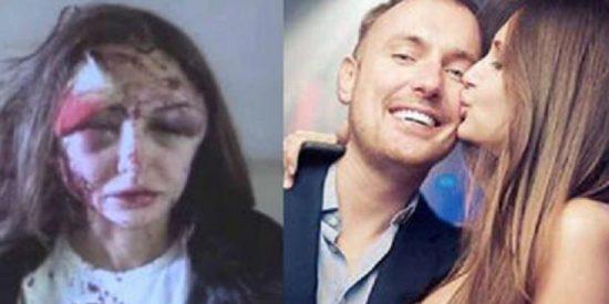 Un millonario le destroza la cara a su novia modelo de una paliza y huye como alma que lleva el diablo
