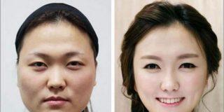 En Corea del Sur le da a todo el mundo por cambiarse la cara y ya no hay quien se aclare