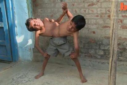 """Los gemelos que comparten las piernas y el estómago: """"No queremos separarnos"""""""