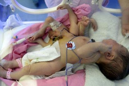 Un niño viene al mundo con 4 manos y 4 pies en un hospital de China