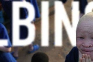 El Papa pone su voz para denunciar la persecución a los albinos en África