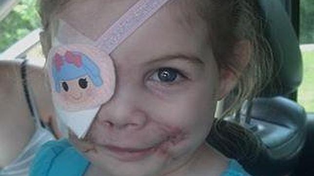 Echan de un restaurante de KFC a una niña de 3 años herida por un perro por 'dar miedo' a la clientela