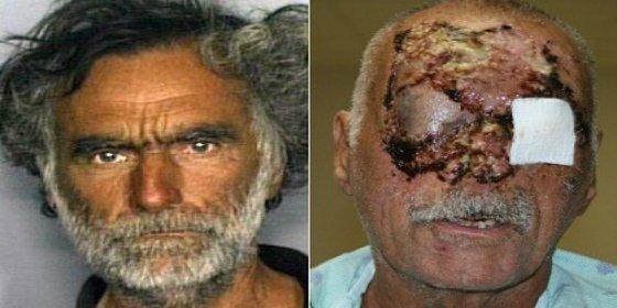 ¡Alerta máxima! Llega a Ibiza la 'droga caníbal': un policía se lleva el primer mordisco