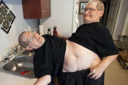 [Vídeo] Los felices hermanos gemelos que llevan 62 años unidos por la cintura