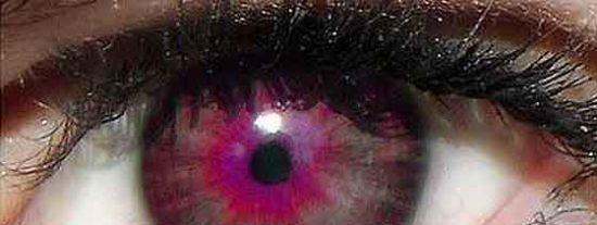 Una ameba le devora un ojo por no cambiarse sus lentes de contacto durante medio año