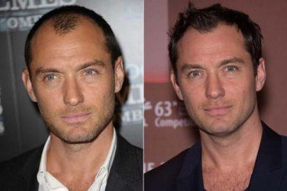 La belleza masculina: Las ventajas e inconvenientes de los injertos de pelo