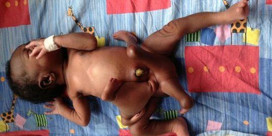 [Vídeo] Operan con éxito a un bebé que nació con cuatro piernas y cuatro brazos