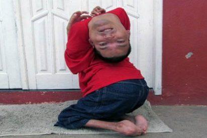[Vídeo] El hombre que nació con la cabeza al revés es todo un ejemplo de superación