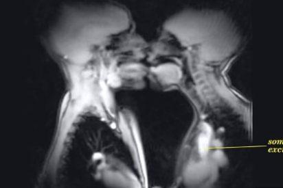 ¿Quieres ver tu cuerpo en resonancia magnética mientras practicas sexo?