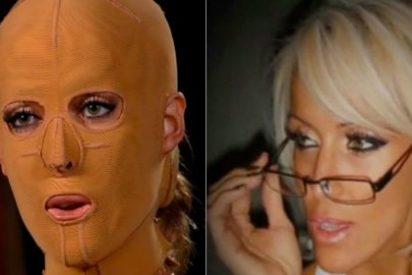 [Vídeo] La estremecedora historia de la bella mujer con máscara a quien una celosa dejó sin rostro