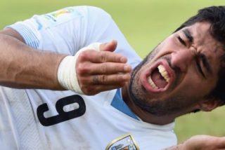 Luis Suárez desvela la causa de sus mordiscos