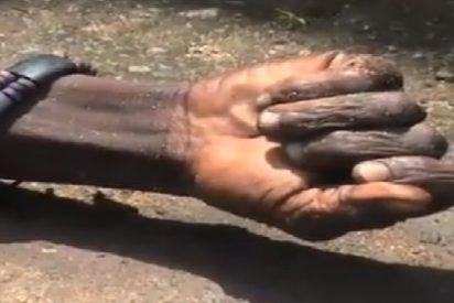 [Vídeo] ¡Terrorífico! Un muerto por ébola 'resucita' en la calle tras ser rociado con lejía