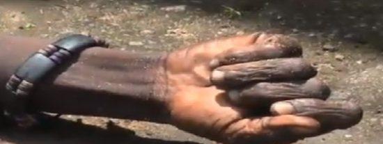 ¡Terrorífico! Un muerto por ébola 'resucita' en la calle tras ser rociado con lejía