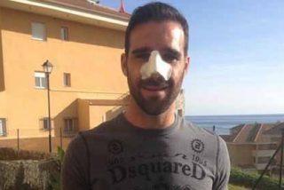 Así ha quedado Gámez tras su operación de nariz