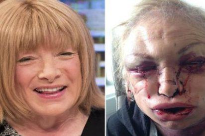 Kellie Maloney, de leyenda del boxeo a todo un Frankenstein por una operación de cambio de sexo