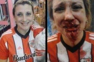 Es brutalmente agredida por ser seguidora de River
