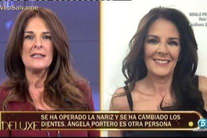 """El extraño y radical cambio físico de Ángela Portero:""""Para mí era necesario operarme"""""""