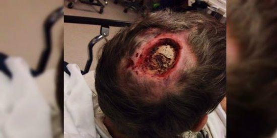 ¡La foto del tipo que se ha rascado la cabeza hasta llegar al hueso!
