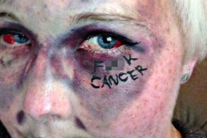 """Ahora resulta que la mayoría de los cánceres son el resultado de la """"mala suerte"""""""