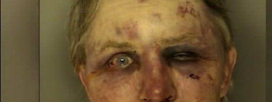 Así le dejó la cara el cabreado sobrino tras haberle sorprendido violando a su novia