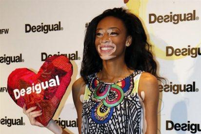 Chantalle Winnie, la primera modelo con vitíligo