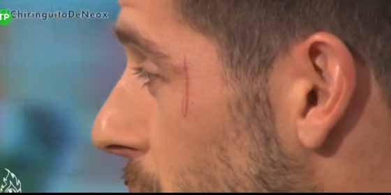 La marca que Benzema dejó a Fabricio en la cara