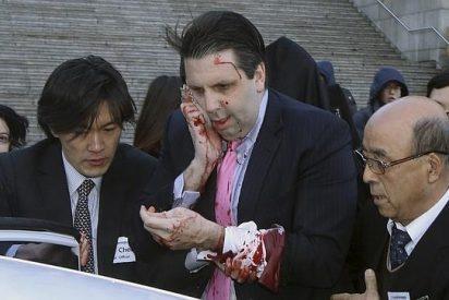 Un facineroso armado con una cuchilla de afeitar hiere de gravedad al embajador de EEUU en Corea