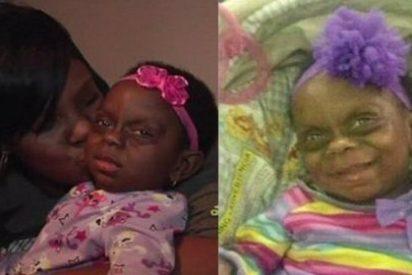 """La bebé enferma que sufre burlas por una foto en Facebook: """"Mi hija no es un monstruo"""""""