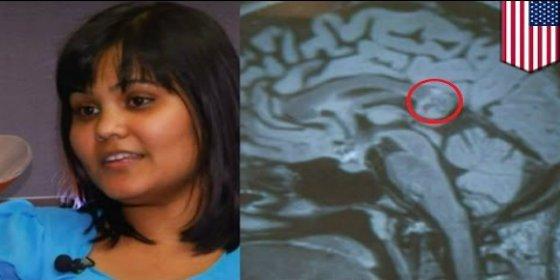 La operan de un tumor y le encuentran en el cerebro... ¡a su gemela con pelo y dientes!