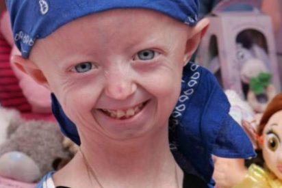 Muere a los 17 años la niña más vieja del mundo