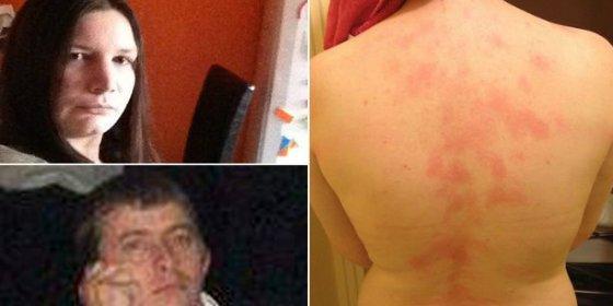 La mujer que es alérgica a los besos del marido no se atreve ni a llorar de rabia