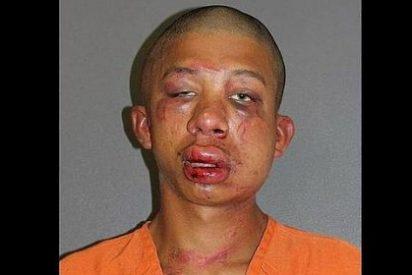 Así le dejó la cara el padre del niño de 11 años de quien abusó sexualmente