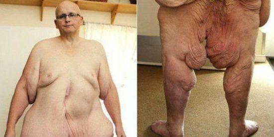 El hombre más gordo del mundo que se ha quitado 25 kilos de piel para andar ligero