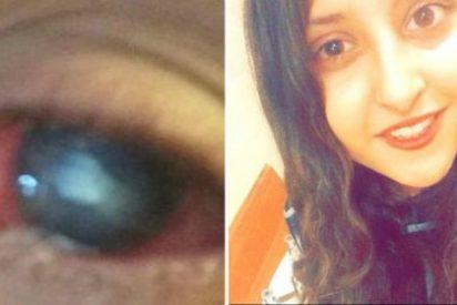 Un extraño parásito se come la córnea del ojo de una estudiante británica