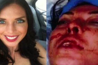 [Vídeo] Así le rompen la cara a una modelo borracha dos policías nada modélicos