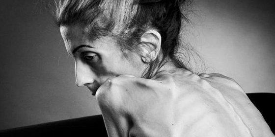 El escalofriante vídeo de la mujer con anorexia que pide socorro para no morir