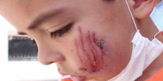 El niño al que un pitbull ha mordido la cara tras perder su globo en casa de la vecina