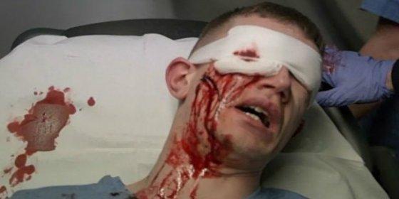 Un joven se arranca los ojos y se los come tras ponerse 'ciego' de 'cristal'