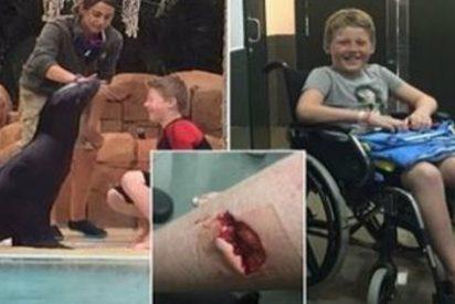 Un león marino le arranca un trozo de pierna durante su cumpleaños en Tenerife