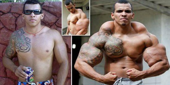 Se convierte en 'Hulk' inyectándose aceite y casi le amputan los brazos